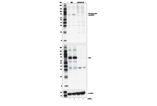 Western blot analysis of extracts from MEF or MEF/RIP KO cells, untreated (-) or treated with Mouse Tumor Necrosis Factor-α #5178 (mTNF-α; 20 ng/ml, 5 min; +), using Phospho-RIP (Ser321) Antibody (Mouse Specific) (upper), total RIP (D94C12) XP<sup>®</sup> Rabbit mAb #3493 (middle), or β-Actin (D6A8) Rabbit mAb #8457 (lower). MEF/RIP KO cells were kindly provided by Dr. Junying Yuan, Harvard Medical School, Boston, MA.