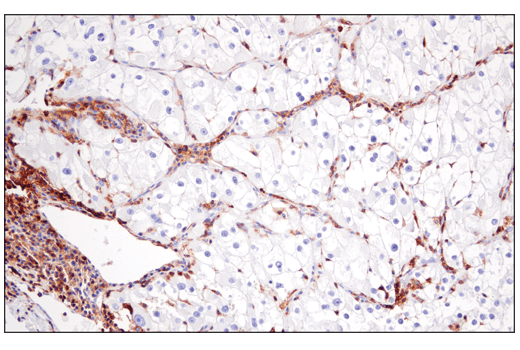 Immunohistochemical analysis of paraffin-embedded human renal cell carcinoma using CD48 (D7L8I) XP<sup>®</sup> Rabbit mAb.