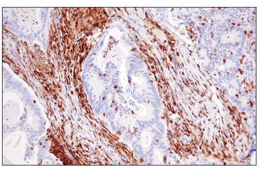Immunohistochemical analysis of paraffin-embedded human colon carcinoma using CD48 (D7L8I) XP<sup>®</sup> Rabbit mAb.