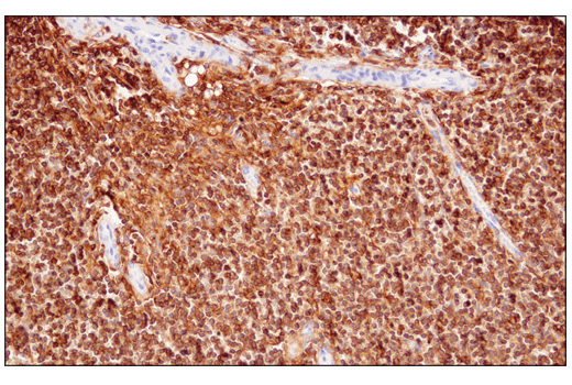 Immunohistochemical analysis of paraffin-embedded human non-Hodgkin's lymphoma using CD48 (D7L8I) XP<sup>®</sup> Rabbit mAb.