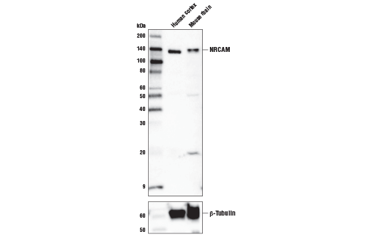 Western blot analysis of extracts from mouse brain and rat brain lysates using NRCAM (D2H1T) Rabbit mAb (upper) and β-Actin (13E5) Rabbit mAb #4970 (lower).