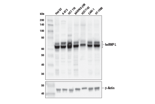 Western blot analysis of extracts from various cell lines using hnRNP L Antibody (upper) and β-Actin (D6A8) Rabbit mAb #8457 (lower). KARPAS cell line source: Dr. Abraham Karpas at the University of Cambridge.