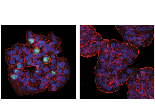 Confocal immunofluorescent analysis of HT-29 cells, untreated (left) or post-processed with λ-phosphatase (right), using</p><p>Phospho-CASC5 (Thr943/Thr1155) (D8D4N) Rabbit mAb (green). Actin filaments were labeled with DyLight™ 554 Phalloidin #13054 (red). Samples were mounted in ProLong<sup>®</sup> Gold Antifade Reagent with DAPI #8961 (blue).