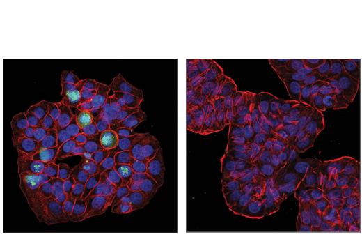 Monoclonal Antibody Acrosome