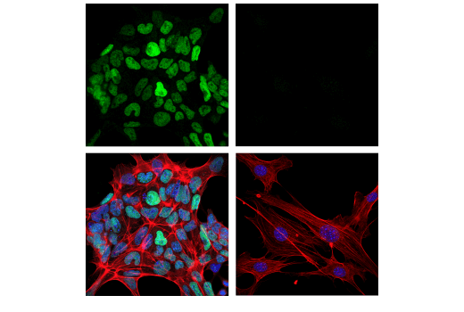 Confocal immunofluorescent analysis of mES cells (left, positive) and NIH/3T3 cells (right, negative) using DNMT3B (E9X7R) Rabbit mAb (green). Actin filaments were labeled with DyLight™ 554 Phalloidin #13054 (red). Cells were mounted in ProLong<sup>®</sup> Gold Antifade Reagent with DAPI #8961 (blue).