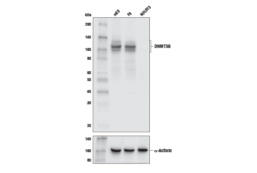 Western blot analysis of extracts from mES, F9, and NIH/3T3 cell lines using DNMT3B (E9X7R) Rabbit mab (upper) and α-Actinin (D6F6) XP<sup>®</sup> Rabbit mAb #6487 (lower). As expected, NIH/3T3 cells show very low to no expression of DNMT3B.