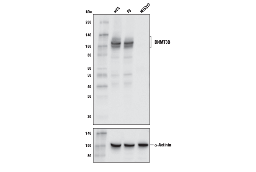 Western blot analysis of extracts from mES, F9, and NIH/3T3 cell lines using DNMT3B (E4I4O) Rabbit mab (Mouse Specific) (upper) and α-Actinin (D6F6) XP<sup>®</sup> Rabbit mAb #6487 (lower). As expected, NIH/3T3 cells show very low to no expression of DNMT3B.