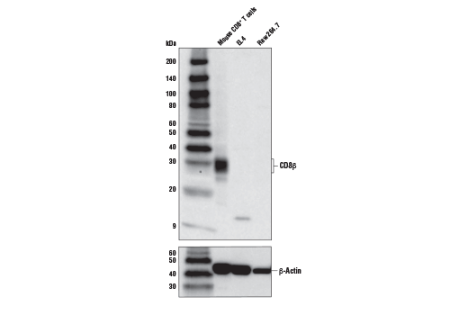 Western Blotting Image 1: CD8β (D7C8H) Rabbit mAb