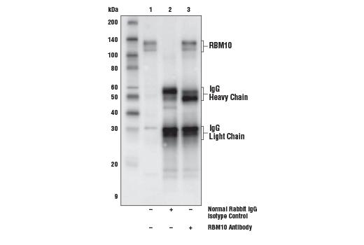 Polyclonal Antibody - RBM10 Antibody - Immunoprecipitation, Western Blotting, UniProt ID P98175, Entrez ID 8241 #18012 - Primary Antibodies