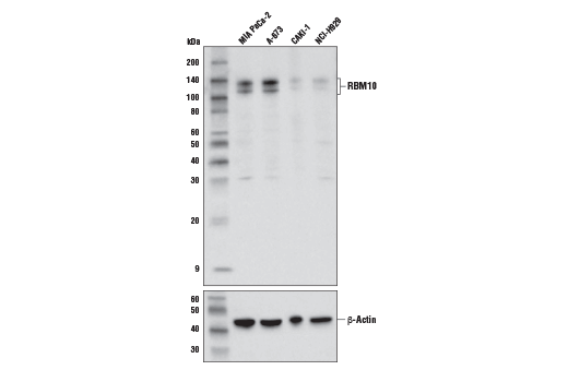 Western blot analysis of extracts from various cell lines using RBM10 Antibody (upper) and β-Actin (D6A8) Rabbit mAb #8457 (lower). As expected, CAKI-1 and NCI-H929 cells are low for RBM10 expression.