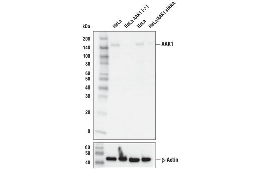 Polyclonal Antibody - AAK1 Antibody - Immunoprecipitation, Western Blotting, UniProt ID Q2M2I8, Entrez ID 22848 #79832, Neuroscience