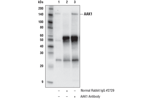 Immunoprecipitation of AAK1 from HeLa cell extracts. Lane 1 is 10% input, lane 2 is Normal Rabbit IgG #2729, and lane 3 is AAK1 Antibody. Western blot analysis was performed using AAK1 Antibody.