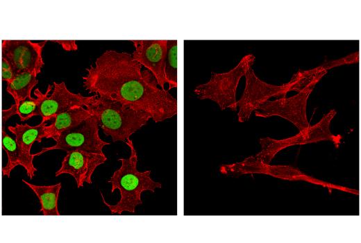 Monoclonal Antibody - FoxA1/HNF3α (E7E8W) Rabbit mAb, UniProt ID P55317, Entrez ID 3169 #53528, Glucose / Energy Metabolism