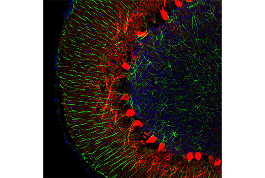 Confocal immunofluorescent analysis of rat cerebellum using Calbindin (D1I4Q) XP<sup>®</sup> Rabbit mAb (Alexa Fluor<sup>®</sup> 647 Conjugate) (red) and GFAP (GA5) Mouse mAb #3670 (green). Samples were mounted in ProLong<sup>®</sup> Gold Antifade Reagent with DAPI #8961 (blue).