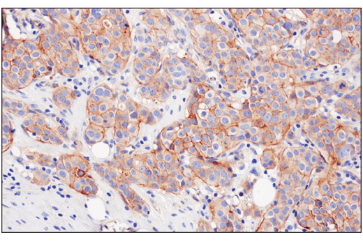 Immunohistochemical analysis of paraffin-embedded human ductal breast carcinoma using Nectin-2/CD112 (D8D3F) XP<sup>®</sup> Rabbit mAb.