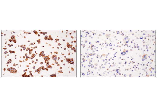 Immunohistochemical analysis of paraffin-embedded RT4 cell pellet (left, high-expressing) or HDLM-2 cell pellet (right, low-expressing) using Nectin-2/CD112 (D8D3F) XP<sup>® </sup>Rabbit mAb.