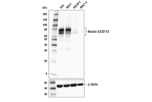 WB analysis of extracts from various human cells using Nectin-2/CD112 (D8D3F) (upper) and β-Actin (D6A8) (lower).