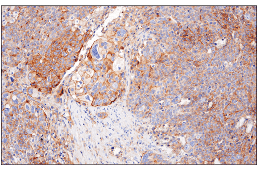 Immunohistochemical analysis of paraffin-embedded human ovarian serous carcinoma using Nectin-2/CD112 (D8D3F) XP<sup>® </sup>Rabbit mAb.