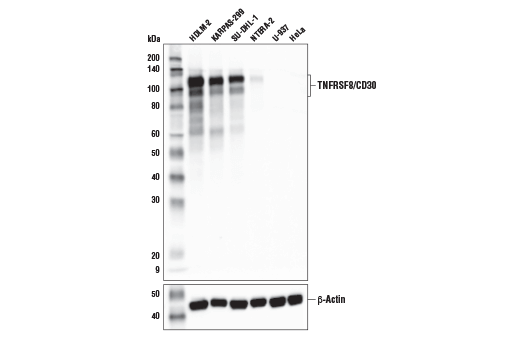 Western Blotting - TNFRSF8/CD30 (E7E4D) XP® Rabbit mAb