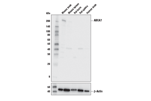 Western blot analysis of extracts from various tissues using ABCA7 Antibody (Mouse Specific) (upper) and β-Actin (D6A8) Rabbit mAb #8457 (lower).