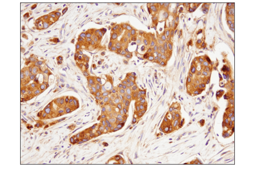Immunohistochemical analysis of paraffin-embedded human breast carcinoma using Rab7 (E9O7E) Mouse mAb.