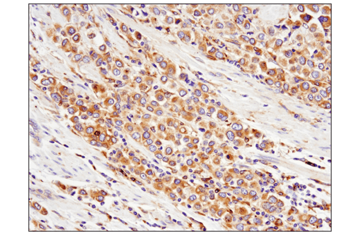 Immunohistochemical analysis of paraffin-embedded human bladder adenocarcinoma using Rab7 (E9O7E) Mouse mAb.