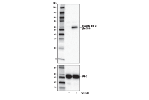 Western blot analysis of extracts from A549 cells, untreated (-) or treated with Poly (I:C) (+), using Phospho-IRF-3 (Ser386) (E7J8G) XP<sup>®</sup> Rabbit mAb (upper) or IRF-3 (D6I4C) XP<sup>®</sup> Rabbit mAb #11904 (lower).