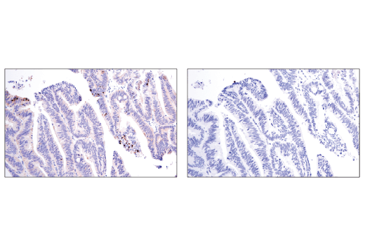 Immunohistochemical analysis of paraffin-embedded human colon adenocarcinoma, untreated (left) or lambda phosphatase treated (right), using Phospho-SQSTM1/p62 (Ser349) (E7M1A) Rabbit mAb.