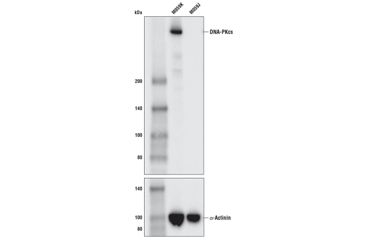 Western blot analysis of extracts from M059K cells, which express normal levels of DNA-PKcs, and M059J cells, which lack DNA-PKcs, using DNA-PKcs (E6U3A) Rabbit mAb (upper) or α-Actinin (D6F6) XP<sup>®</sup> Rabbit mAb #6487 (lower).