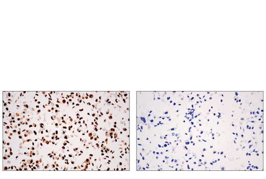 Image 22: Non-Homologous End Joining (NHEJ) DNA Repair Antibody Sampler Kit