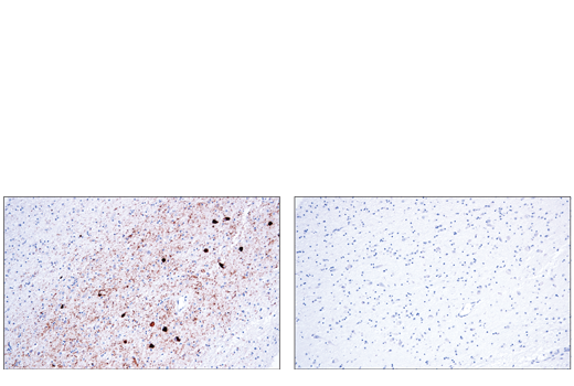 Image 34: Pathological Hallmarks of Alzheimer's Disease Antibody Sampler Kit