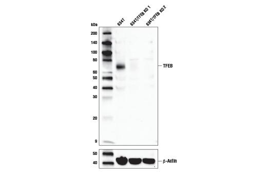 Monoclonal Antibody - TFEB (D4L2P) Rabbit mAb - Immunoprecipitation, Western Blotting, UniProt ID Q9R210, Entrez ID 21425 #32361