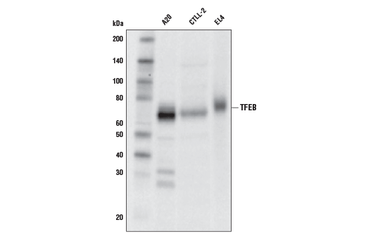 Western blot analysis of extracts from A20, CTLL-2, and EL4 cell lines using TFEB (D4L2P) Rabbit mAb.