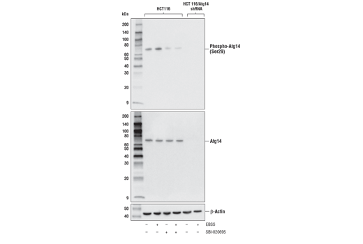 Western blot analysis of extracts from HCT 116 and HCT 116/Atg14 shRNA knockout cells, untreated (-) or starved using Earle's Balanced Salt Solution (EBSS, 2 hr; +) and the ULK1 inhibitor SBI-0206965 #29089 (50 μM, 2 hr; +) as indicated, using Phospho-Atg14 (Ser29) (D4B8M) Rabbit mAb (upper), Atg14 (D1A1N) Rabbit mAb #96752 (middle), or β-Actin (D6A8) Rabbit mAb (lower). HCT 116/Atg14 shRNA knockout cells were kindly provided by Dr. Do-Hyung Kim, University of Minnesota, Minneapolis, MN.