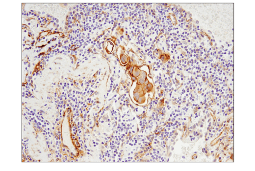 Monoclonal Antibody Immunohistochemistry Paraffin Rho Protein Signal Transduction - count 9