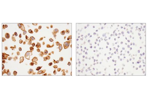 Immunohistochemical analysis of paraffin-embedded SK-BR-3 cell pellet (left, positive) or Daudi cell pellet (right, negative) using RhoB (D1J9V) Rabbit mAb.