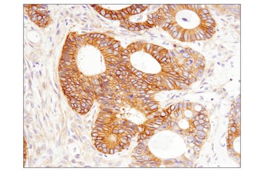 Immunohistochemical analysis of paraffin-embedded human colon carcinoma using RhoB (D1J9V) Rabbit mAb.