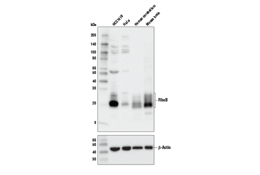Western blot analysis of lysates from HCC1419 cells, HeLa cells, human cerebellum, and whole mouse brain using RhoB (D1J9V) Rabbit mAb (upper) or β-Actin (D6A8) Rabbit mAb#8457 (lower).
