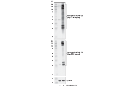 Western blot analysis of extracts from 293T cells, mock transfected (-) or transfected with a construct expressing Myc/DDK-tagged full-length human Semaphorin-4D/CD100 protein (hSema4D-Myc/DDK; +), using Semaphorin-4D/CD100 (E8S8A) Rabbit mAb (upper), DYKDDDDK Tag Antibody #2368 (middle), and β-Actin (D6A8) Rabbit mAb #8457 (lower).