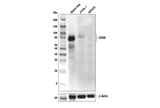 Western blot analysis of extracts from mouse lung, and J774.1 and NIH/3T3 cells using CD39/NTPDase 1 (E2X6B) XP<sup>®</sup> Rabbit mAb (Mouse Specific) (upper) and β-Actin (D6A8) Rabbit mAb #8457 (lower).