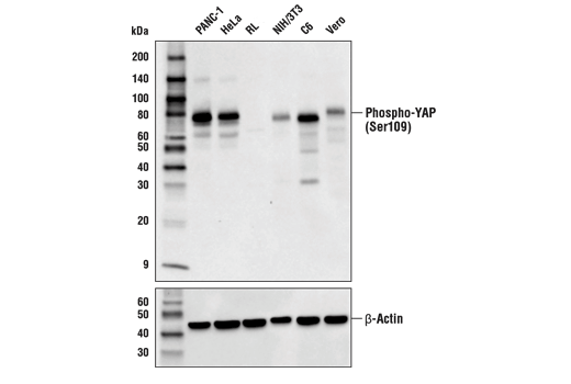 Western blot analysis of extracts from various cell lines using using Phospho-YAP (Ser109) (E5I9G) Rabbit mAb (upper) and β-Actin (D6A8) Rabbit mAb #8457 (lower). RL-7 cells are negative for YAP expression, confirming specificity of the antibody. YAP expression is undetectable in RL-7 extracts, as predicted from published gene expression databases and as confirmed with other YAP antibodies.