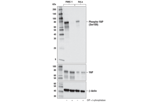 Western blot analysis of extracts from PANC-1 cells and HeLa cells, untreated (-) or treated with calf intestinal phosphatase (CIP) and λ-phosphatase (+), using Phospho-YAP (Ser109) (E5I9G) Rabbit mAb (upper), YAP (D8H1X) XP<sup>®</sup> Rabbit mAb #14074 (middle), and β-Actin (D6A8) Rabbit mAb #8457 (lower).