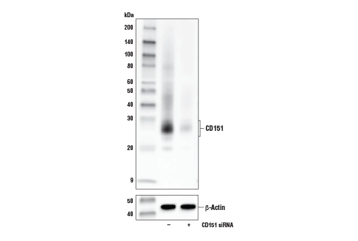 Western blot analysis of extracts from HeLa cells, mock transfected (-) or transfected with siRNA targeting human CD151 (+), using CD151 (E9M8T) Rabbit mAb (upper) and β-Actin (D6A8) Rabbit mAb #8457 (lower).