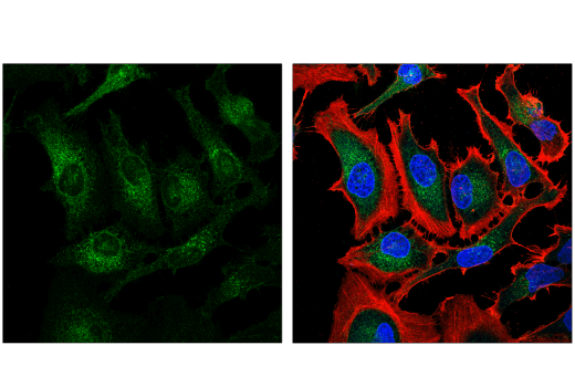 Confocal immunofluorescent analysis of HeLa cells using Nicastrin (D4F6N) Rabbit mAb (green) and β-Actin (8H10D10) Mouse mAb #3700 (red). Blue = Hoechst 33342 #4082 (fluorescent DNA dye).