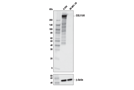 Western blot analysis of extracts from A-204 and SK-MEL-28 cells using COL11A1 Antibody (upper) and β-Actin (D6A8) Rabbit mAb #8457 (lower). As expected, SK-MEL-28 has negative or very low expression of COL11A1.