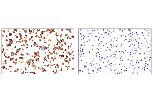 Immunohistochemical analysis of paraffin-embedded HDLM-2 cell pellet (left, positive) or HT-29 cell pellet (right, negative) using CD86 (E2G8P) Rabbit mAb.
