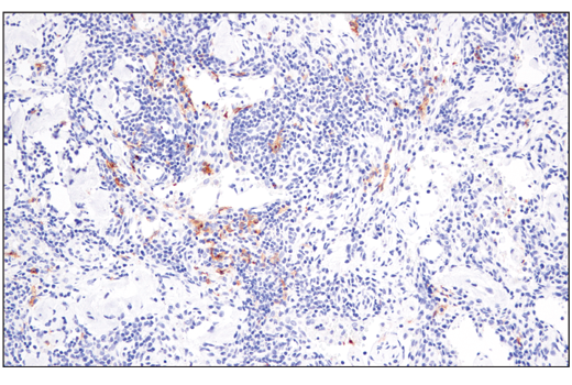 Immunohistochemical analysis of paraffin-embedded human lymph node using XCR1 (D2F8T) Rabbit mAb.