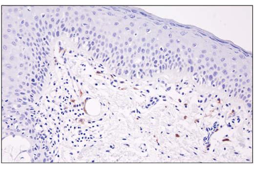 Immunohistochemical analysis of paraffin-embedded human skin using XCR1 (D2F8T) Rabbit mAb.