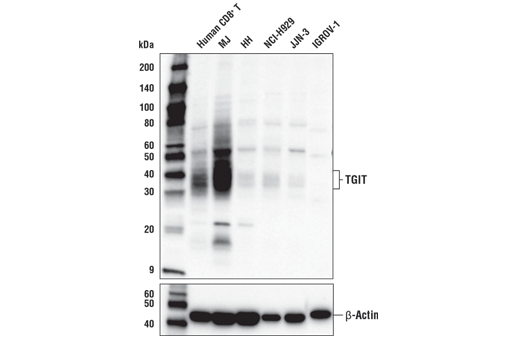 Western blot analysis of extracts from various human cells using TIGIT (E6L7H) Rabbit mAb (upper) and β-Actin (D6A8) Rabbit mAb #8457 (lower). CD8<sup>+</sup> T cells were purified from human blood and stimulated for 7 days using beads coated with CD3 and CD28 antibodies in the presence of human interleukin-2 (hIL-2) #8907 (6.7 ng/ml).