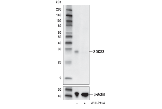 Western blot analysis of extracts from KARPAS-299 cells, untreated (-) or treated with the Jak3 inhibitor WHI-P154 (40 μM, overnight; +), using SOCS3 (D6E1T) Rabbit mAb (upper) or β-Actin (D6A8) Rabbit mAb (lower). KARPAS cell line source: Dr. Abraham Karpas at the University of Cambridge.